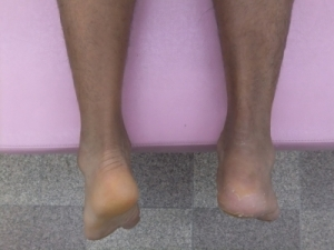 アキレス腱断裂 歩行治療