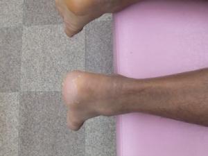 アキレス腱断裂 治療