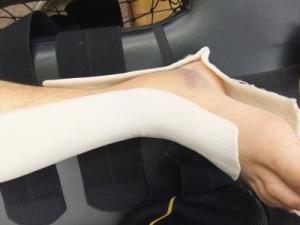 アキレス腱断裂歩行治療法 2