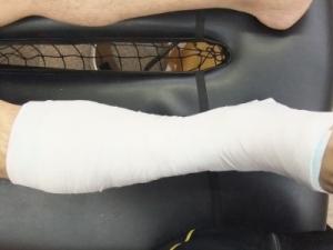 アキレス腱断裂治療法