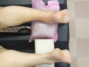 アキレス腱断裂歩行治療法 1