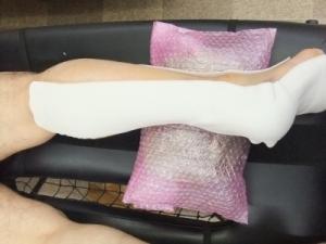 アキレス腱断裂歩行治療法