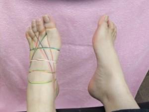 輪ゴム巻療法