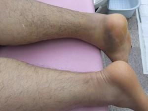 アキレス腱断裂治療報告