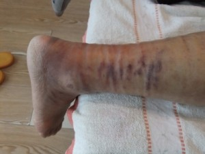 83歳の右アキレス腱断裂1