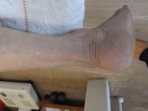 83歳の右アキレス腱断裂2