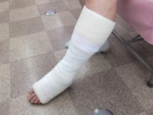 静岡から来院アキレス腱断裂歩行治療