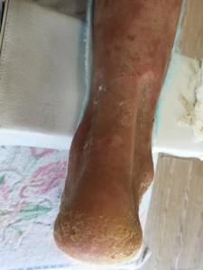 83歳の右アキレス腱断裂5