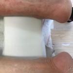83歳の右アキレス腱断裂6