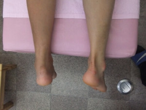 左アキレス腱断裂 治療方法