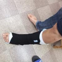 アキレス腱断裂保存治療