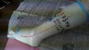 左アキレス腱断裂治療方法