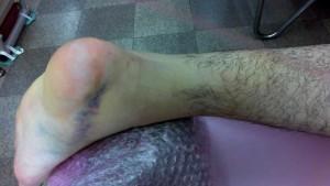 アキレス腱断裂歩行治療