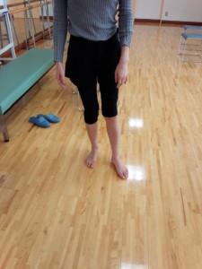 アキレス腱断裂歩行治療その後