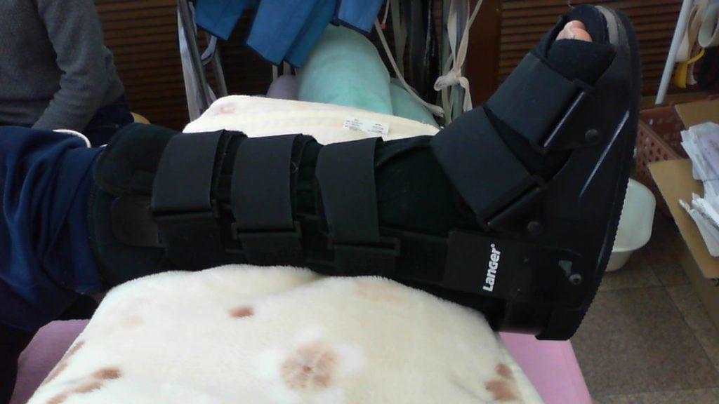 大阪府患者さん アキレス腱断裂歩行治療