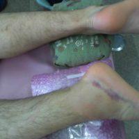大阪府患者さん アキレス腱断裂歩行治療2
