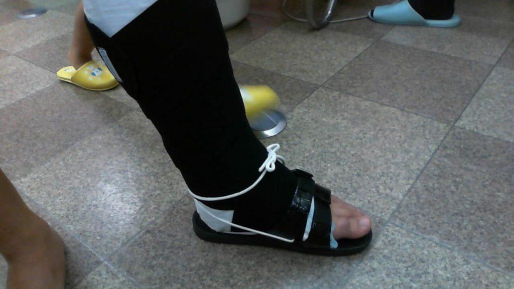 左アキレス腱断裂 歩行治療