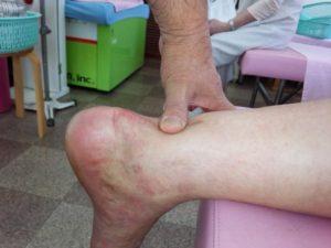 左アキレス腱断裂部 親指が入る陥凹