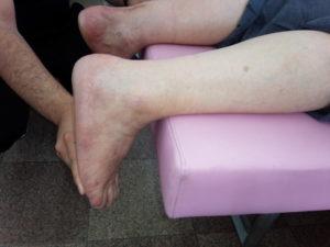 健側(右)の矯正背屈肢位