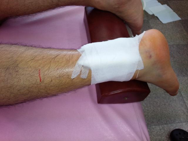 内出血が内果下部にある足