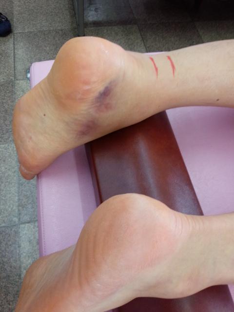 左足断裂部、足内側に皮下出血斑