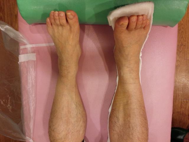 むくみ、包帯の痕が残っている右足