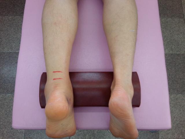 患肢の強いむくみの様子