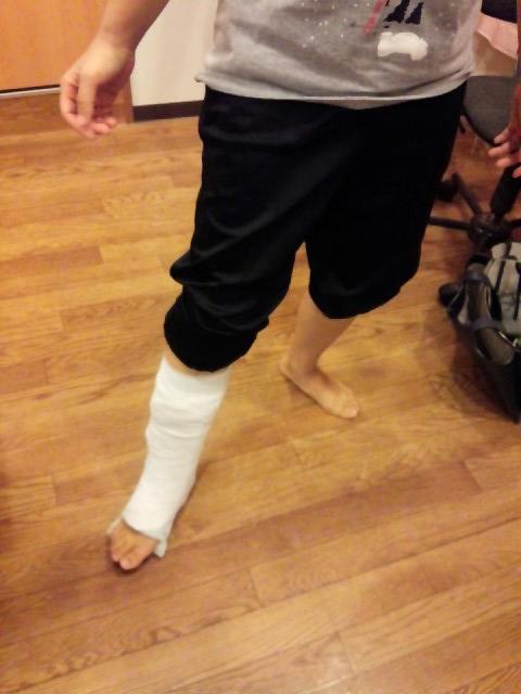 アキレス腱断裂歩行開始時の様子