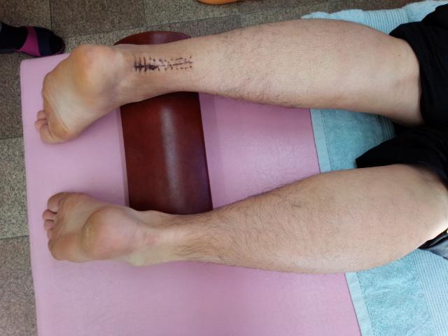 アキレス腱手術後4週間