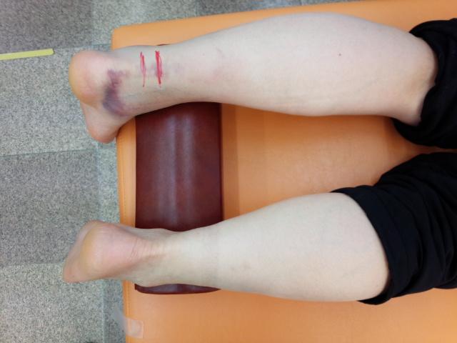 50代女性アキレス腱断裂歩行治療